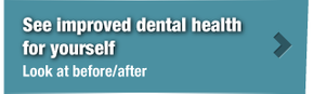 See improved dental health for yourself